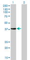 Western Blot analysis of NKX2-5 expression in transfected 293T cell line by NKX2-5 monoclonal antibody (M01), clone 1E4-G5.Lane 1: NKX2-5 transfected lysate(34.9 KDa).Lane 2: Non-transfected lysate.