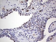 NKX3-1 Antibody - IHC of paraffin-embedded Human prostate tissue using anti-NKX3-1 mouse monoclonal antibody. (Heat-induced epitope retrieval by 1 mM EDTA in 10mM Tris, pH8.5, 120°C for 3min).