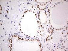 NKX3-1 Antibody - Immunohistochemical staining of paraffin-embedded Carcinoma of Human prostate tissue using anti-NKX3-1 mouse monoclonal antibody.  Dilution: 1:150