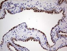NKX3-1 Antibody - Immunohistochemical staining of paraffin-embedded Human prostate tissue within the normal limits using anti-NKX3-1 mouse monoclonal antibody. (Heat-induced epitope retrieval by 1 mM EDTA in 10mM Tris, pH8.5, 120C for 3min,