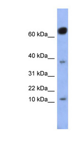 NKX6-3 Antibody - NKX6-3 antibody Western blot of Fetal Small Intestine lysate. This image was taken for the unconjugated form of this product. Other forms have not been tested.