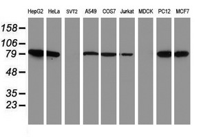 Western blot of extracts (35 ug) from 9 different cell lines by using anti-NLN monoclonal antibody.