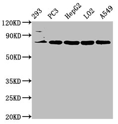 Western Blot Positive WB detected in: 293 whole cell lysate, PC3 whole cell lysate, HepG2 whole cell lysate, LO2 whole cell lysate, A549 whole cell lysate All Lanes: NLN antibody at 3.2µg/ml Secondary Goat polyclonal to rabbit IgG at 1/50000 dilution Predicted band size: 81 KDa Observed band size: 81 KDa