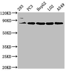 Western Blot Positive WB detected in: 293 whole cell lysate, PC-3 whole cell lysate, HepG2 whole cell lysate, LO2 whole cell lysate, A549 whole cell lysate All lanes: NLN antibody at 3.2µg/ml Secondary Goat polyclonal to rabbit IgG at 1/50000 dilution Predicted band size: 81 kDa Observed band size: 81 kDa