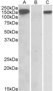 HEK293 lysate (10ug protein in RIPA buffer) overexpressing Human NLRP2 with DYKDDDDK tag probed with (1ug/ml) in Lane A and probed with anti- DYKDDDDK Tag (1/5000) in lane C. Mock-transfected HEK293 probed (1mg/ml) in Lane B. Primary