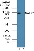Western blot of NALP7 in human liver lysate in the 1) absence and 2) presence of immunizing peptide using Peptide-affinity Purified Polyclonal Antibody to NALP7 at 0.25 ug/ml. Goat anti-rabbit Ig HRP secondary antibody, and PicoTect ECL substrate solution, were used for this test.