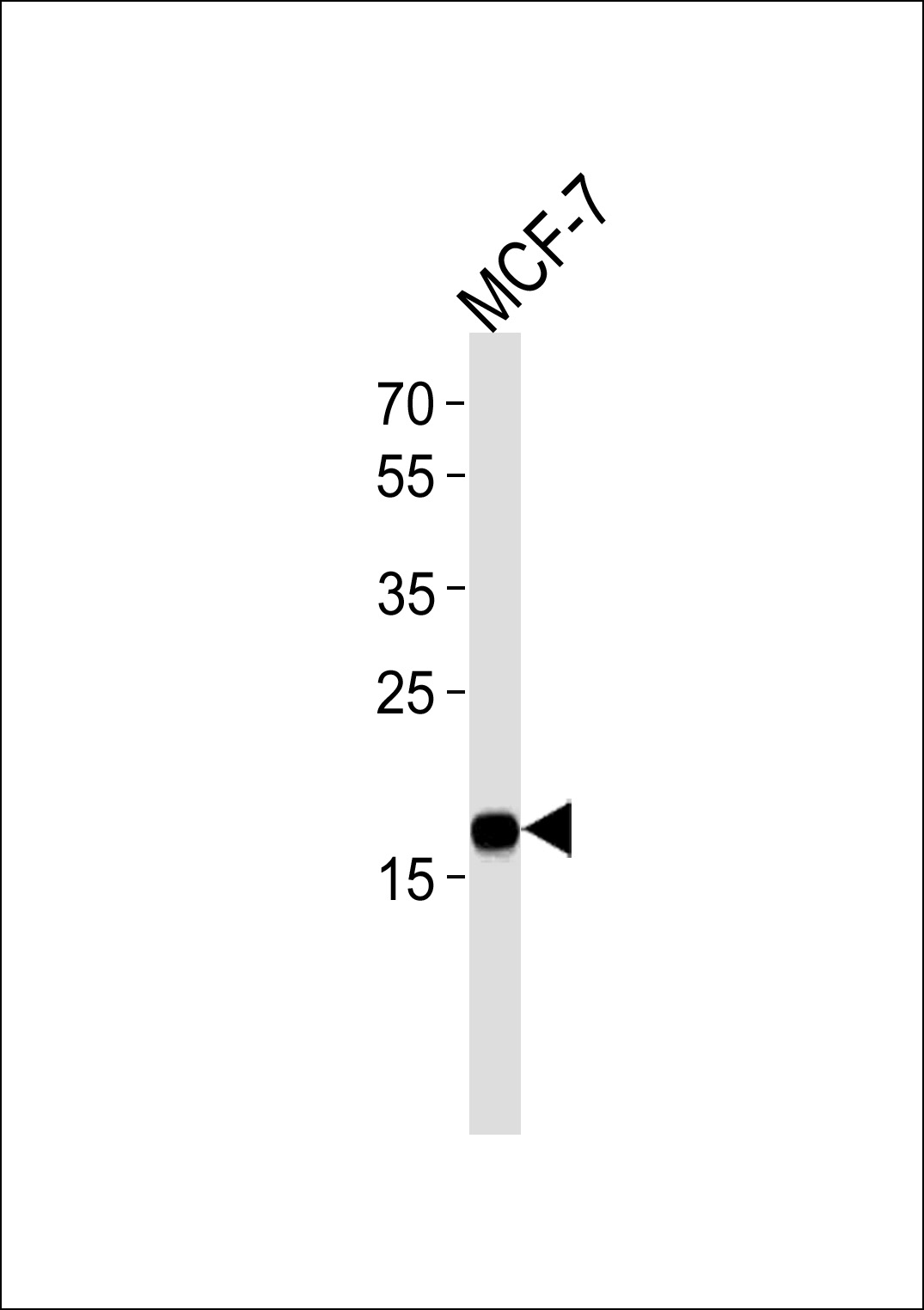 NME1 Antibody western blot of MCF-7 cell line lysates (35 ug/lane). The NME1 antibody detected the NME1 protein (arrow).