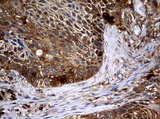 IHC of paraffin-embedded Carcinoma of Human lung tissue using anti-NME1 mouse monoclonal antibody.
