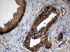IHC of paraffin-embedded Carcinoma of Human prostate tissue using anti-NME1 mouse monoclonal antibody.