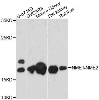 NME1-NME2 Antibody - Western blot analysis of extracts of various cell lines, using NME1-NME2 antibody at 1:3000 dilution. The secondary antibody used was an HRP Goat Anti-Rabbit IgG (H+L) at 1:10000 dilution. Lysates were loaded 25ug per lane and 3% nonfat dry milk in TBST was used for blocking. An ECL Kit was used for detection and the exposure time was 30s.
