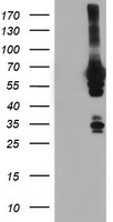 NMT2 Antibody - HEK293T cells were transfected with the pCMV6-ENTRY control (Left lane) or pCMV6-ENTRY NMT2 (Right lane) cDNA for 48 hrs and lysed. Equivalent amounts of cell lysates (5 ug per lane) were separated by SDS-PAGE and immunoblotted with anti-NMT2.