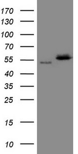 NOB1 / NOB1P Antibody - HEK293T cells were transfected with the pCMV6-ENTRY control. (Left lane) or pCMV6-ENTRY NOB1. (Right lane) cDNA for 48 hrs and lysed. Equivalent amounts of cell lysates. (5 ug per lane) were separated by SDS-PAGE and immunoblotted with anti-NOB1. (1:2000)