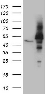 NOB1 / NOB1P Antibody - HEK293T cells were transfected with the pCMV6-ENTRY control. (Left lane) or pCMV6-ENTRY NOB1. (Right lane) cDNA for 48 hrs and lysed