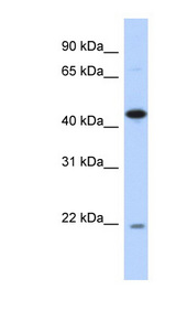 NOB1 / NOB1P Antibody - NOB1 antibody Western blot of Transfected 293T cell lysate. This image was taken for the unconjugated form of this product. Other forms have not been tested.