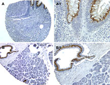 NOD1 Antibody - Formalin-fixed, paraffin-embedded sections of human colon (A, A1) and pancreas (B, B1) stained for CARD4 expression (CARD4 antibody at 1:2000) using a DAB chromogen and Hematoxylin counterstain. Magnification: A (20X), A1 (40X). B (10X), B1 (40X).