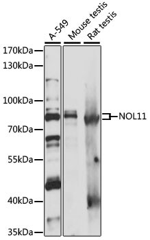 NOL11 Antibody - Western blot analysis of extracts of various cell lines, using NOL11 antibody at 1:1000 dilution. The secondary antibody used was an HRP Goat Anti-Rabbit IgG (H+L) at 1:10000 dilution. Lysates were loaded 25ug per lane and 3% nonfat dry milk in TBST was used for blocking. An ECL Kit was used for detection and the exposure time was 1s.