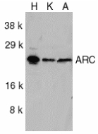 NOL3 / ARC Antibody - Western blot of ARC in HeLa (H), KB (K), and A549 (A) whole cell lysates with ARC antibody at 1:1000 dilution.