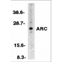 NOL3 / ARC Antibody - Western blot analysis of ARC in HeLa whole cell lysates with ARC antibody at 1:500 dilution.