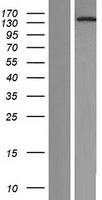NOL8 Protein - Western validation with an anti-DDK antibody * L: Control HEK293 lysate R: Over-expression lysate