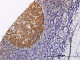 Immunoperoxidase of monoclonal antibody to NOLC1 on formalin-fixed paraffin-embedded human tonsil. [antibody concentration 1.5 ug/ml]