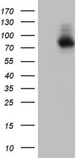 Nor-1 / NR4A3 Antibody - HEK293T cells were transfected with the pCMV6-ENTRY control (Left lane) or pCMV6-ENTRY NR4A3 (Right lane) cDNA for 48 hrs and lysed. Equivalent amounts of cell lysates (5 ug per lane) were separated by SDS-PAGE and immunoblotted with anti-NR4A3.
