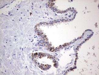 Nor-1 / NR4A3 Antibody - IHC of paraffin-embedded Carcinoma of Human prostate tissue using anti-NR4A3 mouse monoclonal antibody. (Heat-induced epitope retrieval by 1 mM EDTA in 10mM Tris, pH8.5, 120°C for 3min).