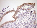 Immunohistochemical staining of paraffin-embedded Human endometrium tissue within the normal limits using anti-NR4A3 mouse monoclonal antibody. (Heat-induced epitope retrieval by Tris-EDTA, pH8.0) Dilution: 1:150