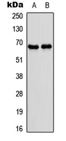 Nor-1 / NR4A3 Antibody - Western blot analysis of NR4A3 expression in IMR32 (A); rat skeletal muscle (B) whole cell lysates.