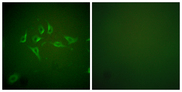 Immunofluorescence analysis of HepG2 cells, using iNOS Antibody. The picture on the right is blocked with the synthesized peptide.