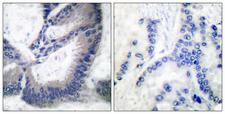 NOS2 / iNOS Antibody - Immunohistochemistry analysis of paraffin-embedded human lung carcinoma tissue, using iNOS Antibody. The picture on the right is blocked with the synthesized peptide.