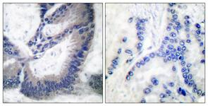 IHC of paraffin-embedded human lung carcinoma tissue, using iNOS Antibody. The picture on the right is treated with the synthesized peptide.
