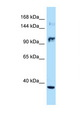 NOS2 antibody LS-C146027 Western blot of Jurkat Cell lysate. Antibody concentration 1 ug/ml.  This image was taken for the unconjugated form of this product. Other forms have not been tested.