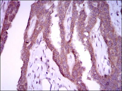 NOS2 / iNOS Antibody - Immunohistochemistry-Paraffin: iNOS Antibody (4E5) - Immunohistochemical analysis of paraffin-embedded breast cancer tissues using iNOS mouse mAb with DAB staining.