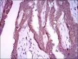 Immunohistochemistry-Paraffin: iNOS Antibody (4E5) - Immunohistochemical analysis of paraffin-embedded breast cancer tissues using iNOS mouse mAb with DAB staining.