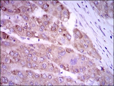 NOS2 / iNOS Antibody - Immunohistochemistry-Paraffin: iNOS Antibody (4E5) - Immunohistochemical analysis of paraffin-embedded liver cancer tissues using iNOS mouse mAb with DAB staining.