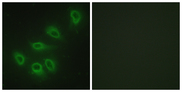 Immunofluorescence analysis of HeLa cells, using eNOS Antibody. The picture on the right is blocked with the synthesized peptide.