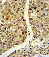 NOS3 / eNOS Antibody - Formalin-fixed and paraffin-embedded human hepatocarcinoma reacted with NOS3 Antibody , which was peroxidase-conjugated to the secondary antibody, followed by DAB staining. This data demonstrates the use of this antibody for immunohistochemistry; clinical relevance has not been evaluated.