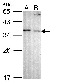 Sample (30 ug of whole cell lysate). A: A431 , B: H1299. 12% SDS PAGE. NOSIP antibody diluted at 1:1000.