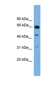 NPAS1 antibody LS-C116019 Western blot of Mouse Brain lysate.  This image was taken for the unconjugated form of this product. Other forms have not been tested.