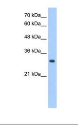 Jurkat cell lysate. Antibody concentration: 2.5 ug/ml. Gel concentration: 12%.  This image was taken for the unconjugated form of this product. Other forms have not been tested.