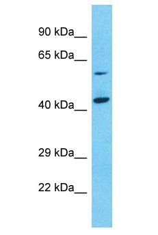 NPEPL1 Antibody - NPEPL1 antibody Western Blot of Jurkat. Antibody dilution: 1 ug/ml.  This image was taken for the unconjugated form of this product. Other forms have not been tested.