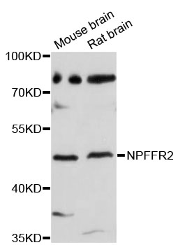 Western blot analysis of extracts of various cell lines, using NPFFR2 antibody at 1:3000 dilution. The secondary antibody used was an HRP Goat Anti-Rabbit IgG (H+L) at 1:10000 dilution. Lysates were loaded 25ug per lane and 3% nonfat dry milk in TBST was used for blocking. An ECL Kit was used for detection and the exposure time was 90s.