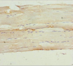 NPHP3 Antibody - Immunohistochemistry of paraffin-embedded human skeletal muscle tissue at dilution 1:100