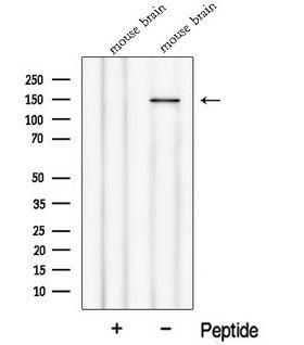 NPHP4 Antibody - Western blot analysis of extracts of HeLa cells using NPHP4 antibody. The lane on the left was treated with blocking peptide.