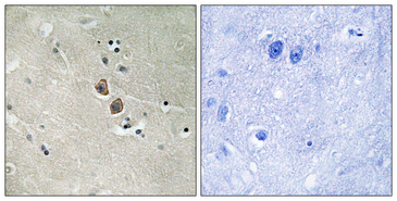 Immunohistochemistry analysis of paraffin-embedded human brain tissue, using NPTN Antibody. The picture on the right is blocked with the synthesized peptide.