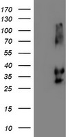 HEK293T cells were transfected with the pCMV6-ENTRY control (Left lane) or pCMV6-ENTRY NPTN (Right lane) cDNA for 48 hrs and lysed. Equivalent amounts of cell lysates (5 ug per lane) were separated by SDS-PAGE and immunoblotted with anti-NPTN.