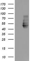 NPTN / SDR1 Antibody - HEK293T cells were transfected with the pCMV6-ENTRY control (Left lane) or pCMV6-ENTRY NPTN (Right lane) cDNA for 48 hrs and lysed. Equivalent amounts of cell lysates (5 ug per lane) were separated by SDS-PAGE and immunoblotted with anti-NPTN.