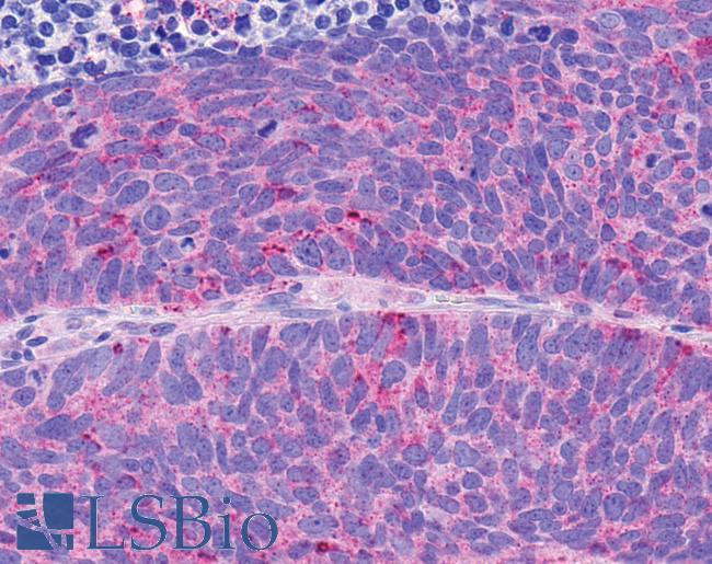 Anti-NPY4R / PPYR1 antibody IHC of human Lung, Small Cell Carcinoma. Immunohistochemistry of formalin-fixed, paraffin-embedded tissue after heat-induced antigen retrieval.