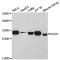 Western blot analysis of extracts of various cell lines, using NQO1 antibody at 1:3000 dilution. The secondary antibody used was an HRP Goat Anti-Rabbit IgG (H+L) at 1:10000 dilution. Lysates were loaded 25ug per lane and 3% nonfat dry milk in TBST was used for blocking. An ECL Kit was used for detection and the exposure time was 90s.