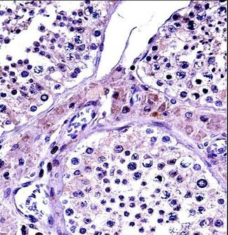 NR0B1 / DAX1 Antibody - NR0B1 Antibody immunohistochemistry of formalin-fixed and paraffin-embedded human testis tissue followed by peroxidase-conjugated secondary antibody and DAB staining.